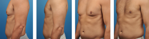 Gynecomastia Surgery Los Angeles
