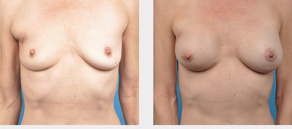 Breast Reconstruction Revision Los Angeles