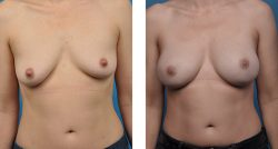 breast reconstruction surgery in beverly hills, CA