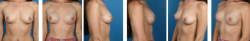 changing your breast size with a breast reconstruction surgery in beverly hills, CA