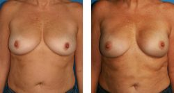 find out if you are a candidate for breast reconstruction surgery for free in Beverly Hills