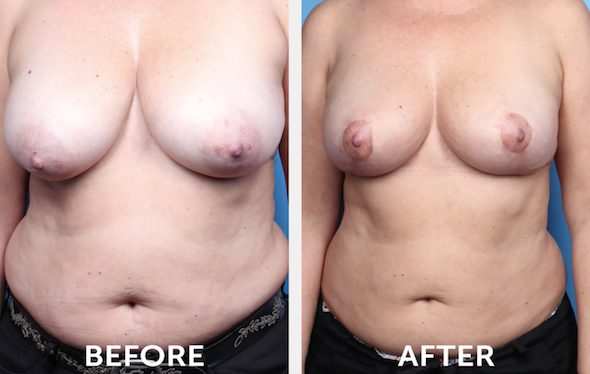 Breast Conserving Surgery in Beverly Hills Before & After